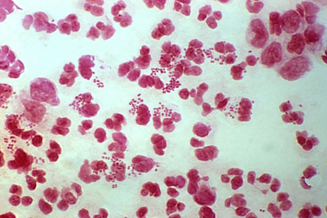 Neisseria gonorrhoeae, the bacterial pathogen that causes gonorrhoea